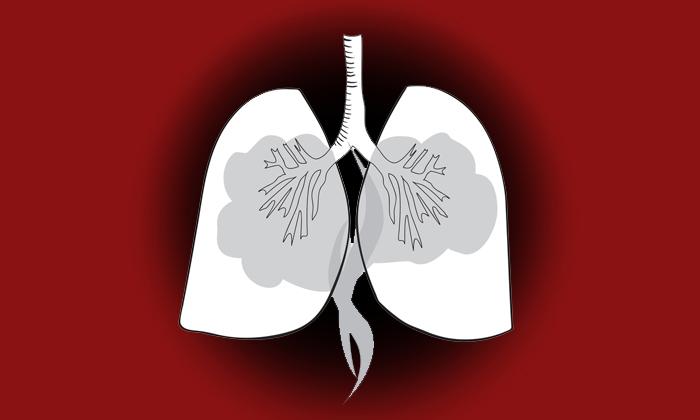 มะเร็งปอด แม้ไม่สูบบุหรี่