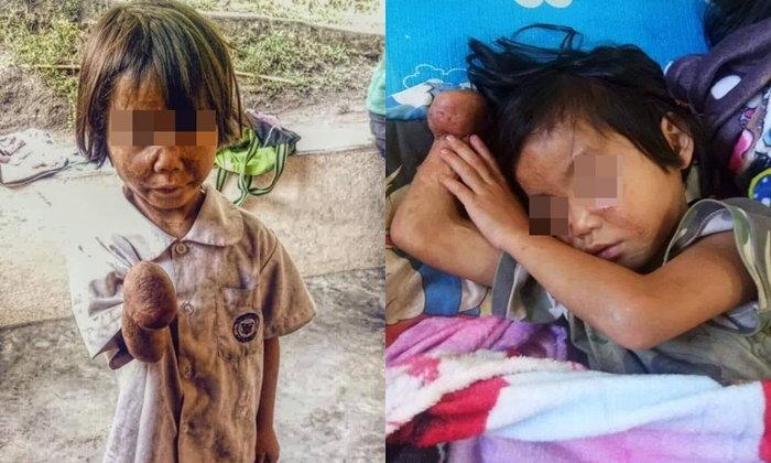 แห่ช่วยเหลือ เด็กหญิงมือขาด ชีวิตรันทด รอยแผลเต็มตัวแต่ไม่ทิ้งการเรียน