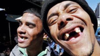 แฟชั่น ฟันหลอ ในกรุงเคปทาวน์? ทำไมต้อง ถอนฟัน?