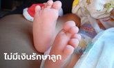 ทารกอายุ 5 วัน ป่วยประหลาด ตาซ้ายหลุด-ตาขวายุบ จมูกมีรูเดียวแต่ทวารหนักมี 2 รู