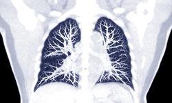 วัณโรคปอด อาการ และการติดต่อของโรควัณโรคปอด พร้อมวิธีรักษา