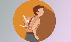 """""""ปวดหลัง"""" สัญญาณเตือนความเสื่อมของกระดูกสันหลัง"""