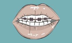 """""""จัดฟันแฟชั่น"""" อันตรายถึงชีวิต สวยหลอก แต่เจ็บจริง"""