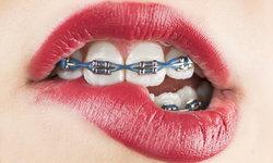 """แพทย์เผย ช่วงวัยอายุที่เหมาะกับการ """"จัดฟัน"""" มากที่สุด"""