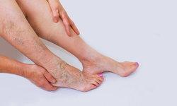 """""""หลอดเลือดแดงส่วนปลายอุดตันที่ขา"""" รักษาด้วยการขยายเส้นเลือดด้วย """"บอลลูน"""""""