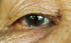 """""""ต้อหิน"""" โรคร้ายของดวงตา ที่ไม่มีสัญญาณเตือน"""