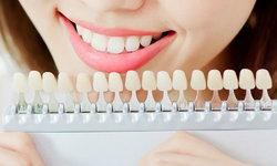"""""""ฟอกสีฟัน"""" มีความเสี่ยงอย่างไรบ้าง?"""