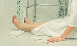 """สัญญาณอันตรายของ """"ผู้สูงอายุ"""" หลังลื่นล้ม เสี่ยงบาดเจ็บทางสมอง-กระดูกสะโพกหัก"""
