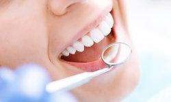 แอปพลิเคชั่นเช็กฟัน-ติดตามผลรักษาฟัน ลดเวลารอหมอที่คลินิก
