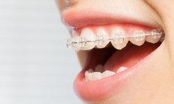 """การ """"จัดฟัน"""" กับความเชื่อผิดๆ ที่คุณควรรู้"""