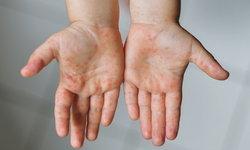"""โรค """"มือ เท้า ปาก"""" โรคติดต่อในเด็กที่พบได้หลังเปิดเทอม"""