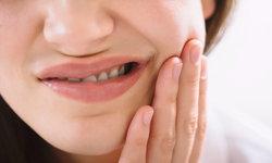 """""""ผ่าฟันคุด"""" กับอันตรายจากผลข้างเคียงที่ควรระวัง"""