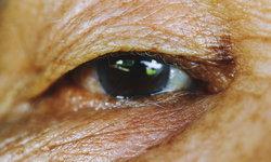 6 โรคตาในผู้สูงอายุ มีอะไรบ้าง รักษาอย่างไร?