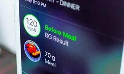 """นักกำหนดอาหารแนะนำ """"นับคาร์บ ดูฉลากก่อนเลือกซื้อ ควบคู่เช็คระดับน้ำตาลสม่ำเสมอ"""" ช่วยคุมเบาหวานได้ดี"""