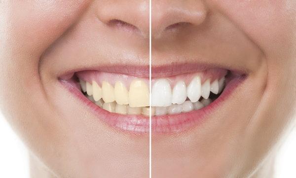 จะทำอย่างไรให้ฟันขาว?