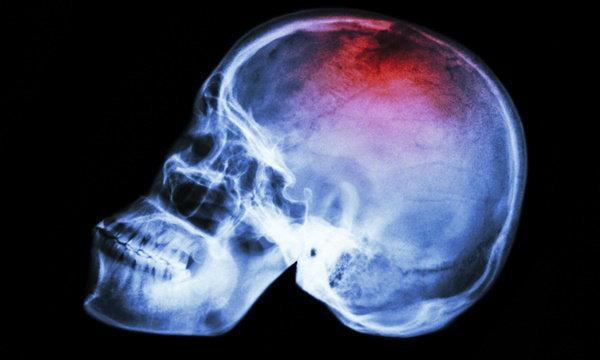 ทราบแล้วแชร์ใหม่! เส้นเลือดในสมองตีบ ไม่ได้รับยาฟรีทุกคน