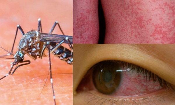 พบในไทย! ไวรัส Zika ติดต่อทางยุง อาการคล้ายไข้เลือดออก