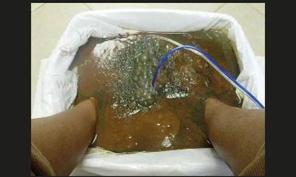 มีจริงหรือ? แช่เท้าในน้ำเกลือต่อแบตเตอรี่ปล่อยไฟฟ้าเพื่อล้างพิษ