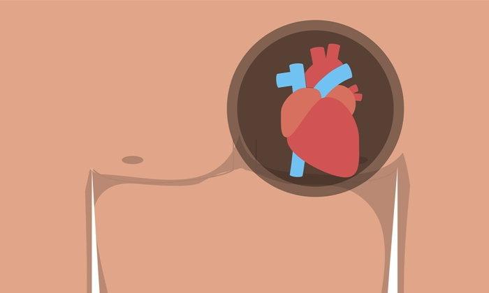 """เรื่อง """"โรคหัวใจ"""" ที่เราอาจเข้าใจผิด เสี่ยงเสียชีวิตไม่รู้ตัว"""