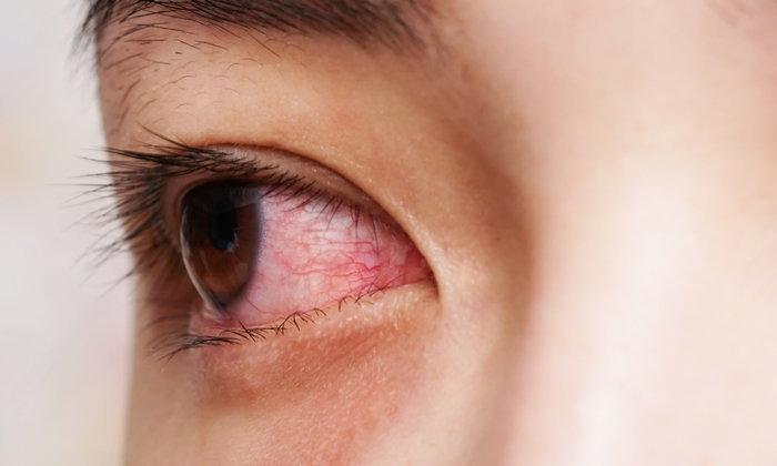3 โรคตาควรระวัง ช่วงสงกรานต์