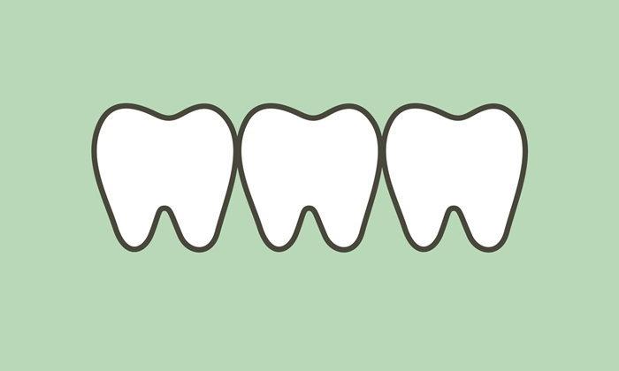 """""""ฟอกฟันขาว"""" แฝงอันตราย หากไม่พบแพทย์ก่อนทำ"""