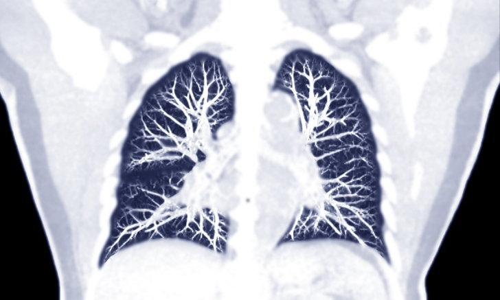 Pulmonary tuberculosis, symptoms and interactions of pulmonary tuberculosis Ready to treat AHR0cHM6Ly9zLmlzYW5vb2suY29tL2hlLzAvdWQvMC80NjkvbHVuZy5qcGc=