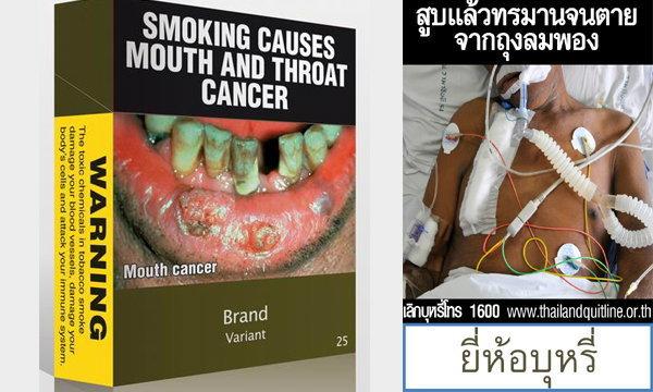 สงครามบนซองบุหรี่