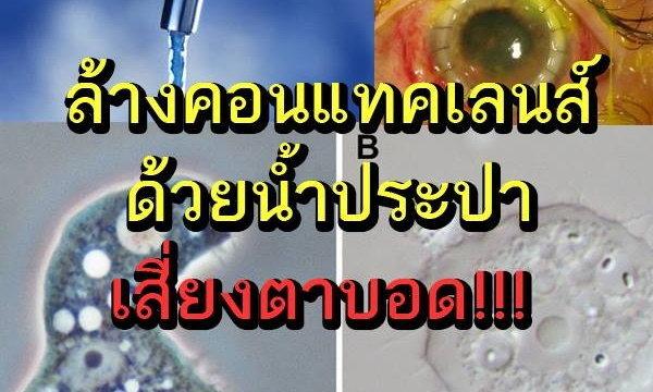 เตือนภัย! ล้างคอนแทคเลนส์ด้วยน้ำประปา เสี่ยงตาบอด