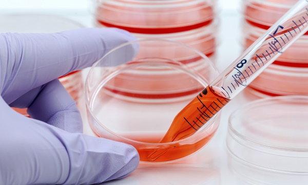 สเต็มเซลล์ (Stem Cell) เซลล์ต้นกำเนิด คืออะไร บริจาคอย่างไร
