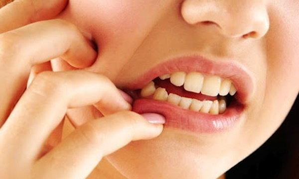 อย่ากลัวเจ็บ…ปัญหาฟันคุดไม่อันตรายอย่างที่คิด