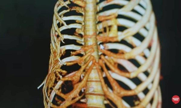โรคกระดูกละลาย โรคกอร์แฮมดีซีส ยังไม่พบสาเหตุ-วิธีรักษา