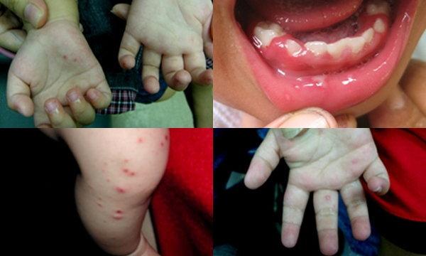 โรคมือเท้าปาก มีอาการอย่างไร และวิธีป้องกัน