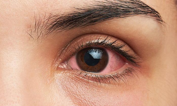 """10 สาเหตุ """"ตาแดง"""" แบบไหนหายได้เอง แบบไหนอันตราย"""