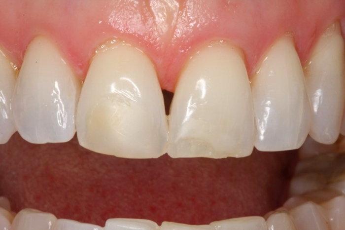 tooth-erosion-2