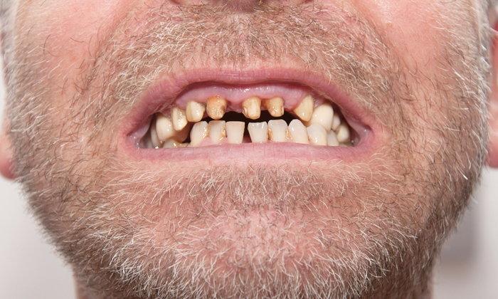 อย่าประมาท! แบคทีเรียในช่องปาก เพิ่มความเสี่ยงเป็นมะเร็งได้