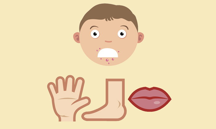 """5 เรื่องที่หลายคนยังไม่รู้เกี่ยวกับโรค """"มือเท้าปาก"""""""