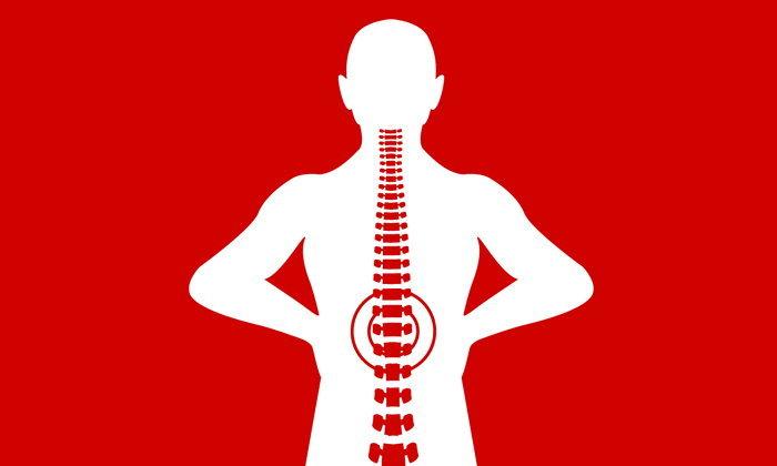 """รักษาโรค """"หมอนรองกระดูกทับเส้นประสาท"""" ผิดวิธีถึงขั้นพิการ"""