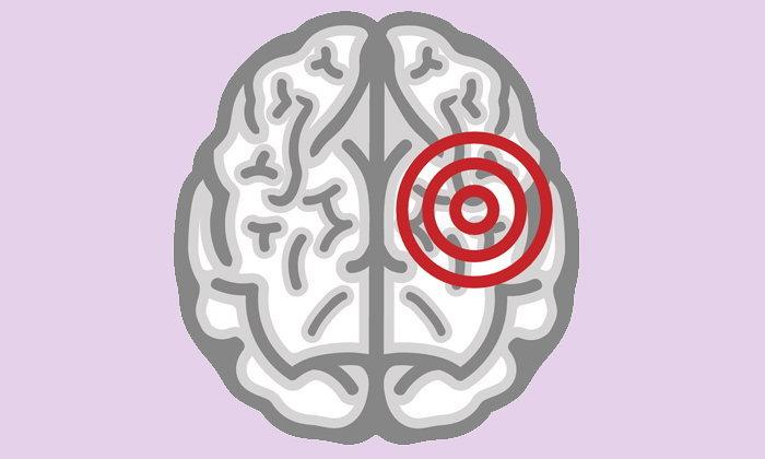 """5 สัญญาณอันตราย """"เส้นเลือดในสมองตีบ"""""""
