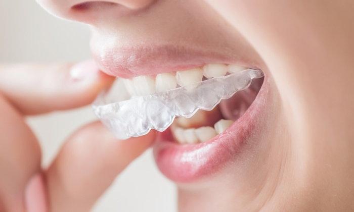 """วิธีดูแลรักษา """"รีเทนเนอร์"""" หลังการจัดฟัน"""