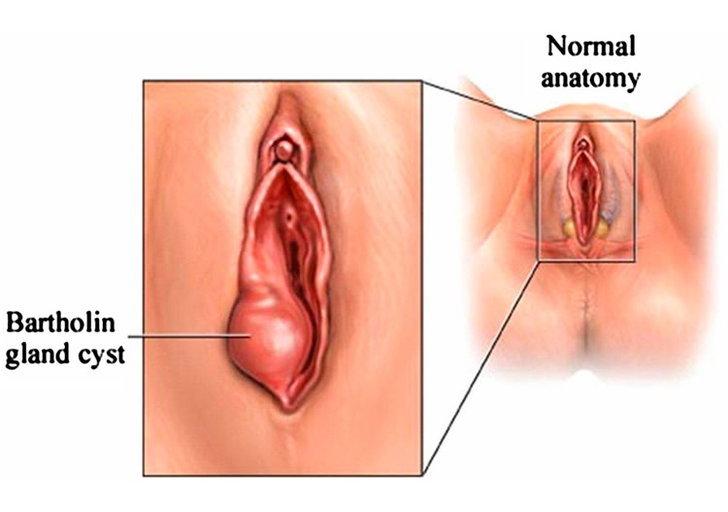 bartholins-glands-are-positio