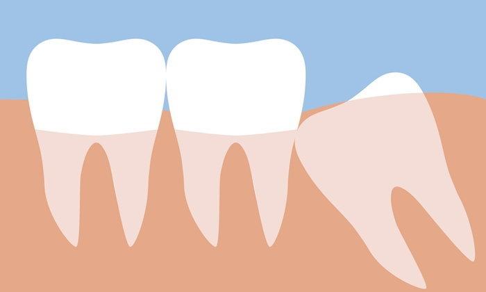 รู้หรือไม่ ? ทำไมต้องผ่าฟันคุดก่อนอายุ 25 ปี