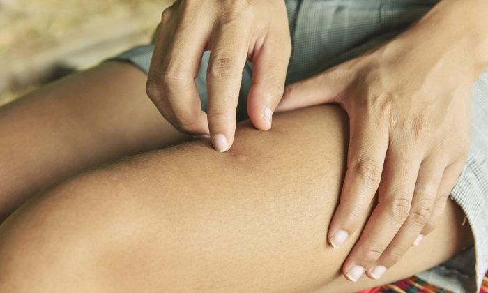 """5 สิ่งที่ควรทำหากรู้ว่าเป็น """"โรคลมพิษ"""""""