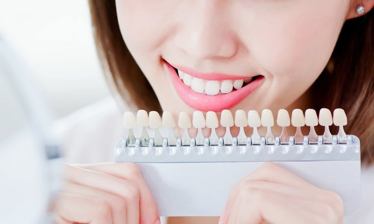 """7 สาเหตุ """"ฟันเหลือง"""" และวิธีแก้ปัญหาด้วยการ """"ฟอกสีฟัน"""""""