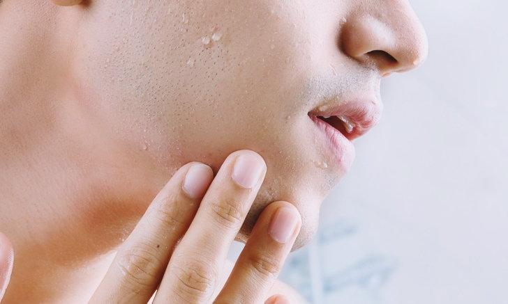 """วิธีแก้อาการ """"คันเครา"""" ความลำบากของคุณผู้ชาย"""
