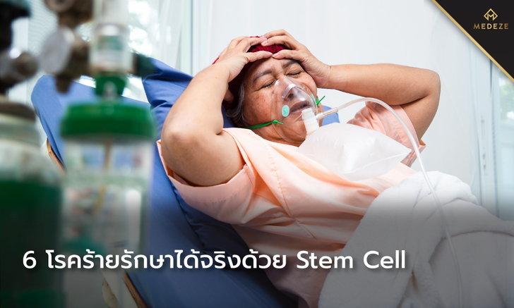 6 โรคร้ายกับแนวทางการรักษาด้วย Stem cell