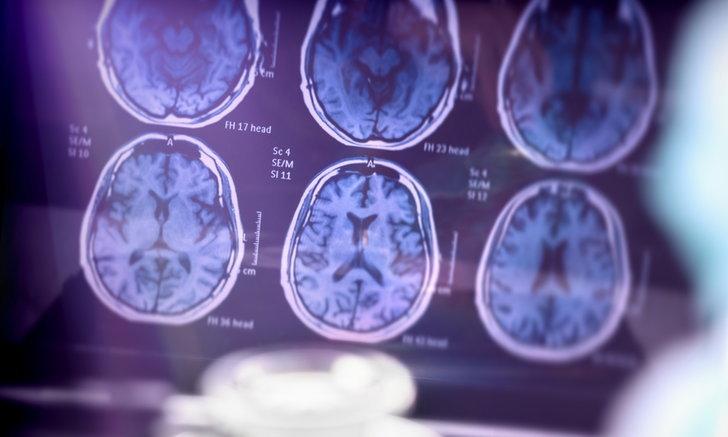 """สัญญาณอันตราย วัย 40+ เสี่ยง """"สมองเสื่อมรุนแรง"""" อย่างรวดเร็ว"""