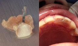 เตือนภัย! ใส่รากฟันเถื่อน มีสิทธิ์ติดเชื้อในกระแสเลือดเสียชีวิต