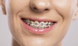 จัดฟันแล้วหน้าเปลี่ยน จริงหรือ?