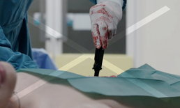 แพทย์เตือน! โดนมีดแทง ดึงมีดออกเลยไม่ได้