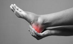 โรครองช้ำ ปวดส้นเท้า ทรมานกว่าที่คุณคิด